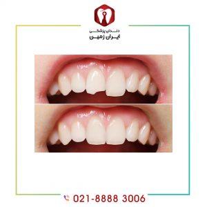 کامپوزیت دندان لب پر از آسیب های بیشتر پیشگیری کرده و دندان را زیبا می نماید