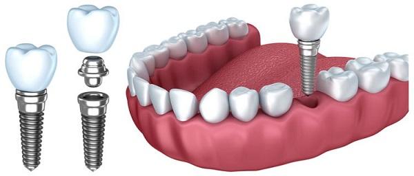 کاشت دندان چگونه انجام می شود