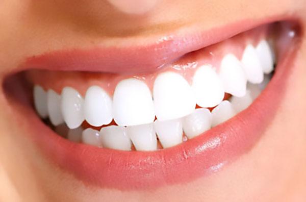 لمینت دندان فوری - کلینیک ایران زمین