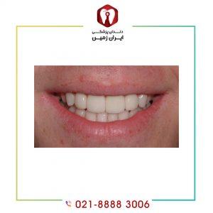 لمینت دندان فوری چیست؟