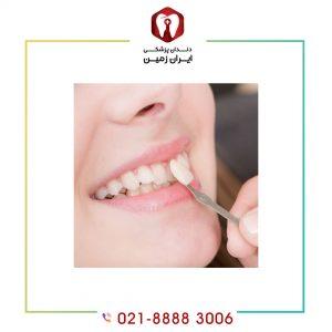 لمینت دندان نامرتب زیبایی را در کمترین زمان به شما هدیه می دهد