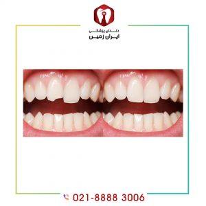 لمینت دندان لب پر شده از پوسیده شدن دندان و شکسته شدن آن پیشگیری می کند