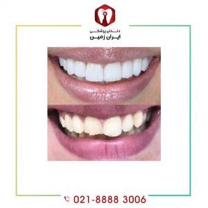 لمینت دندان ساییده شده چگونه انجام می شود؟