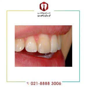 دلایل تغییر رنگ لمینت دندان چیست؟ چکونه می توان آن را به تعویق بی اندازیم؟