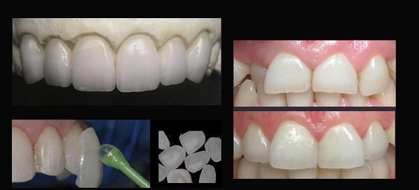 تعویض کامپوزیت دندان با لمینت دندان