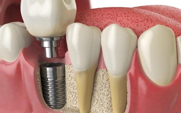 برندهای معتبر ایمپلنت دندان کره ای