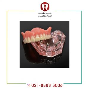 معروف ترین برند ایمپلنت دندان چیست؟ آیا کیفیت بالایی دارد؟