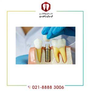 قسمت های مختلف ایمپلنت دندان و موقعیت قرار گیری هر کدام
