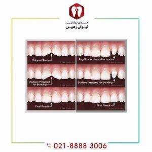 کامپوزیت دندان ساییده شده زیبایی را به دندان شما باز می گرداند