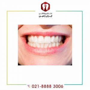 عدم تقارن بعد از کامپوزیت دندان از عوارض قابل جبران کامپوزیت است