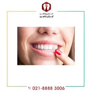 کامپوزیت ونیر دندان خراب امکان پذیر است؟ مراحل کامپوزیت دندان خراب