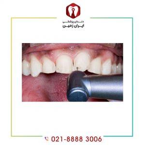 علت کوتاهی عمر لمینت دندان چیست؟ چگونه می توان عمر لمینت را افزایش داد؟