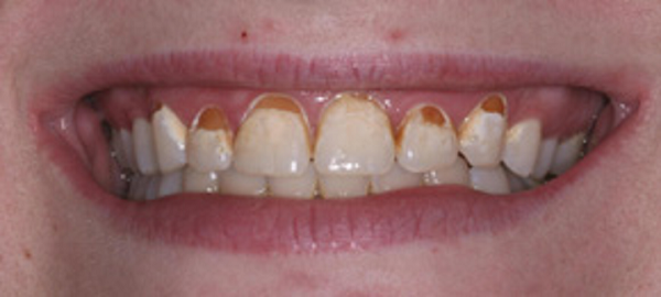 علت پوسیدگی دندان زیر کامپوزیت