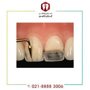 ترمیم کامپوزیت دندان چگونه انجام می شود؟