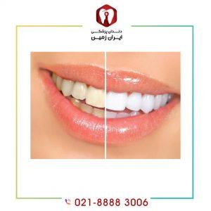 لمینت دندان در برابر لکه قوی تر است یا کامپوزیت دندان ؟