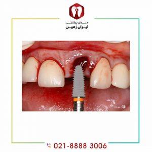 معایب ایمپلنت دندان فوری چیست؟