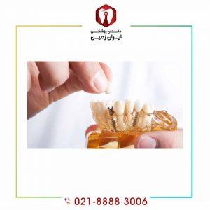 ماندگاری ایمپلنت دندان به چه عواملی بستگی دارد؟