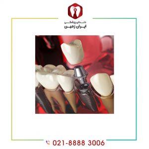 مدت زمان ایمپلنت دندان چه میزان است؟ مراحل ایمپلنت دندان