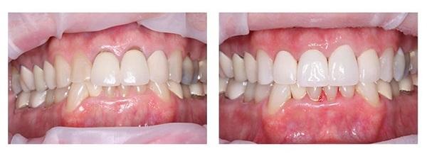 عفونت لثه بعد از کامپوزیت دندان