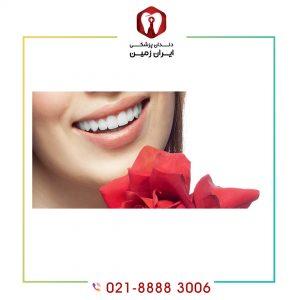 لمینت مستحکم تر است یا کامپوزیت ونیر دندان؟