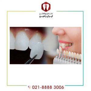 طول درمان لمینت بیشتر است یا کامپوزیت دندان؟