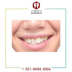 لمینت دندان کج به چه شکل انجام می شود؟