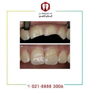 استحکام کامپوزیت دندان تحت تاثیر چه عواملی است؟