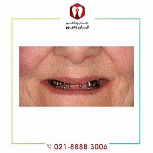 سن مناسب برای ایمپلنت دندان چندسالگی است؟
