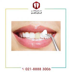 لمینت دندان زرد بهترین روش برای داشتن دندان های صدفی و زیبا