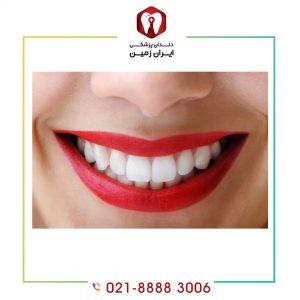 مزایای کامپوزیت ونیر و معایب این روش زیباسازی دندان چیست؟