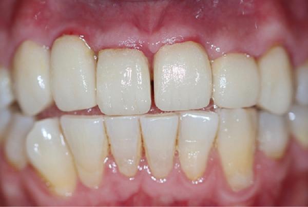 آنتی بیوتیک بعد از کامپوزیت دندان