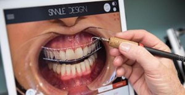 مزایا ایمپلنت دندان دیجیتالی