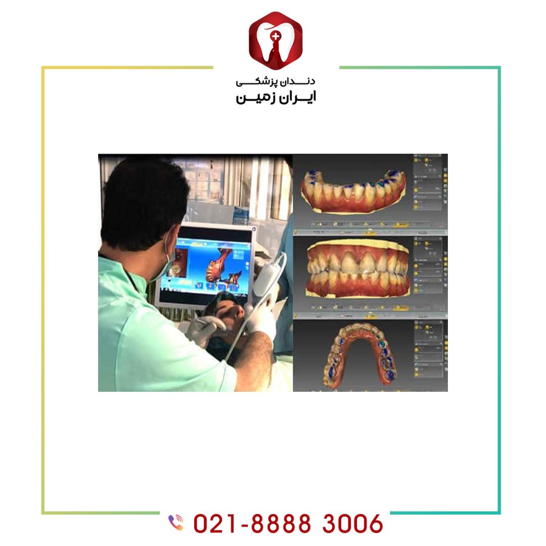 مزایا ایمپلنت دندان دیجیتالی چیست؟