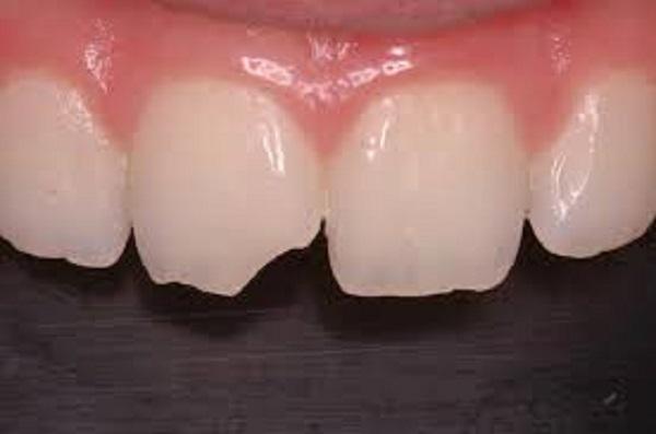شکستن کامپوزیت دندان
