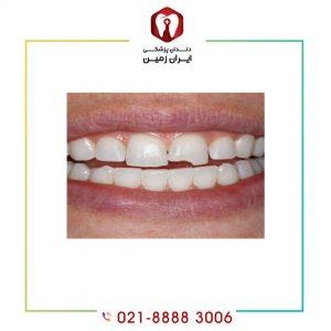 شکستن کامپوزیت دندان به چه دلایلی اتفاق می افتد؟