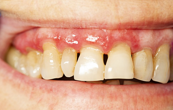 علت لق شدن کامپوزیت دندان
