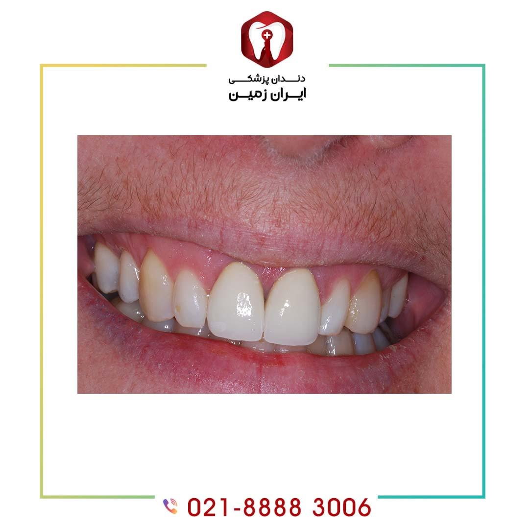 علت لق شدن کامپوزیت دندان چه عواملی است؟ روش پیشگیری