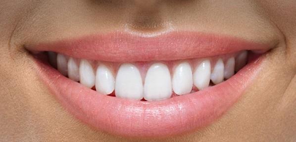 ماندگاری رنگ در کامپوزیت دندان