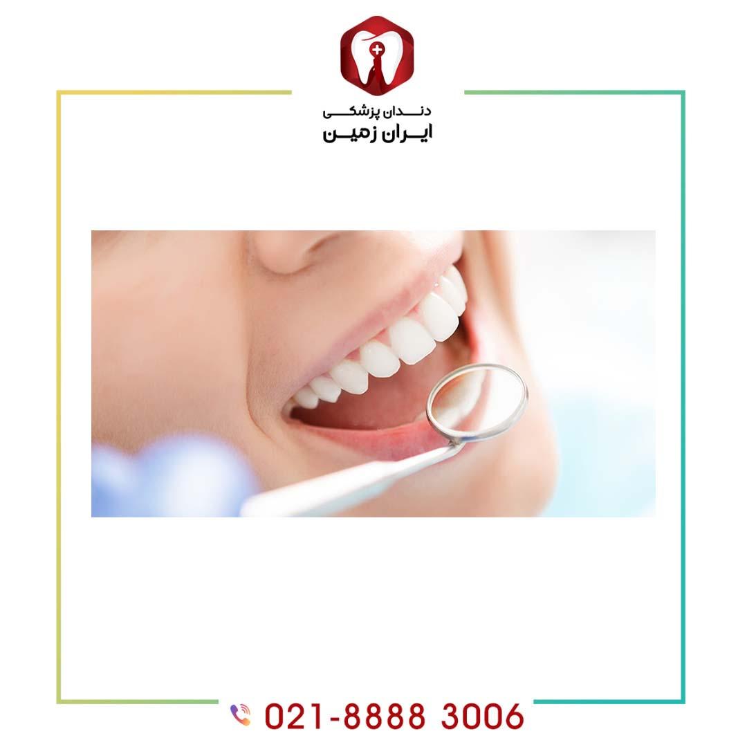ماندگاری رنگ در کامپوزیت دندان به چه عواملی بستگی دارد؟