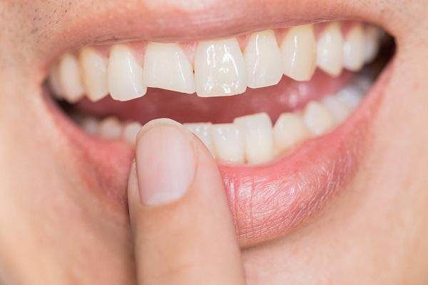 لب پر شدن کامپوزیت دندان