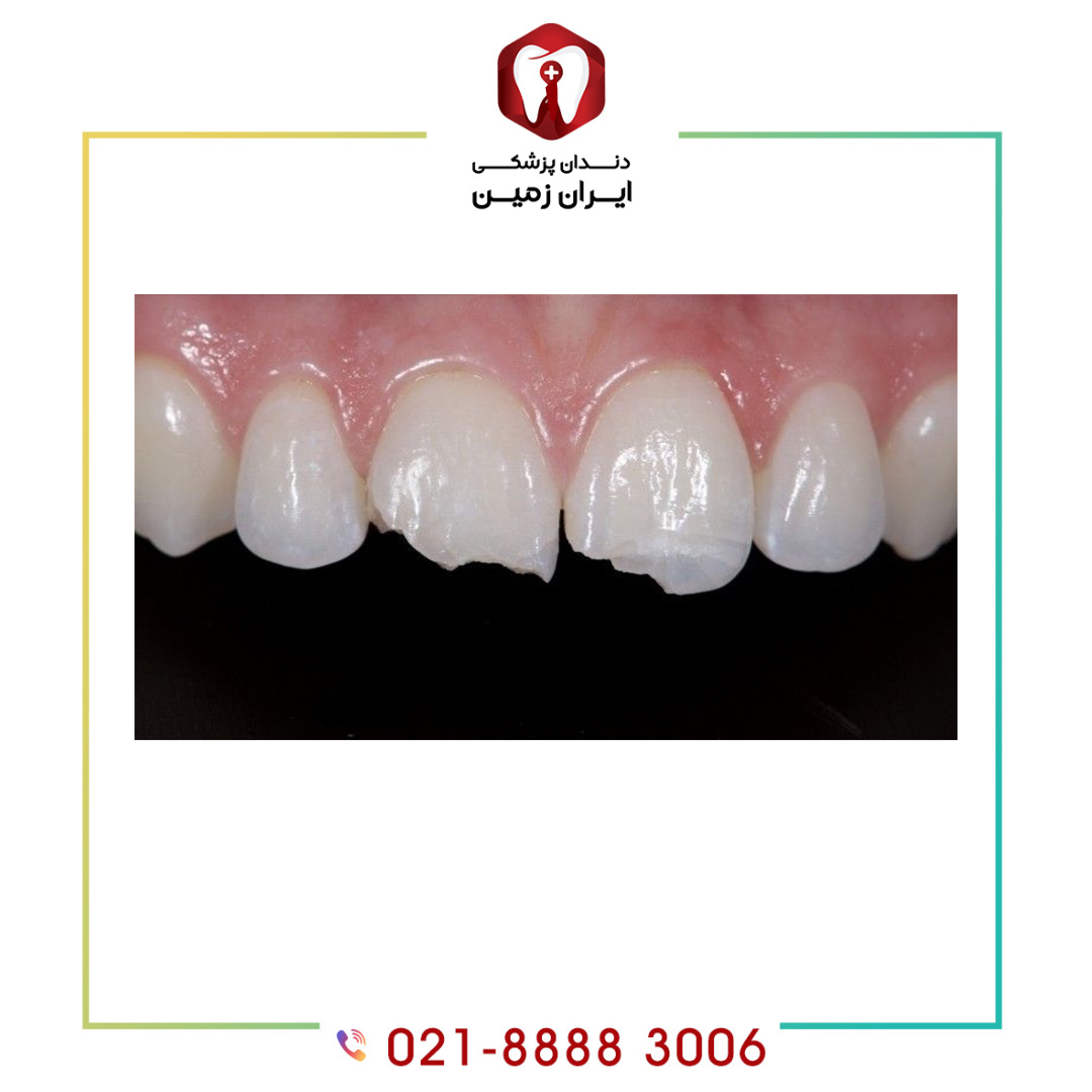 لب پر شدن کامپوزیت دندان به دلایلی اتفاق می افتد؟