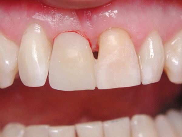 عواقب فشار بر کامپوزیت دندان