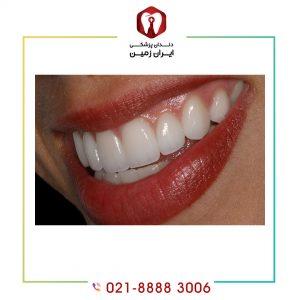 استحکام لمینت دندان در برابر چه عواملی بیشتر است کامپوزیت است؟