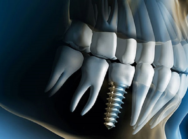 ایمپلنت دیجیتال دندان