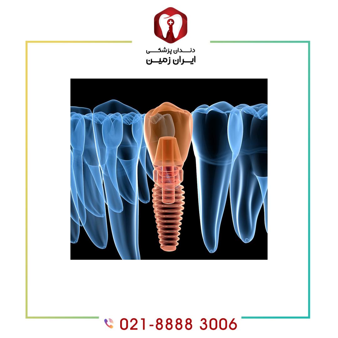 ایمپلنت دیجیتال دندان چیست؟