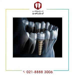 معایب ایمپلنت دندان دیجیتالی چیست؟