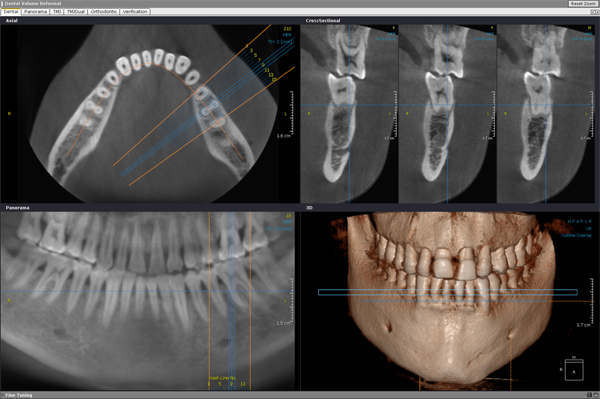 معایب ایمپلنت دندان دیجیتالی
