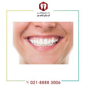 دوام کامپوزیت دندان تا چه اندازه است؟ راه های افزایش دوام کامپوزیت دندان