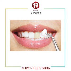 دوام لمینت دندان را چگونه افزایش دهیم؟