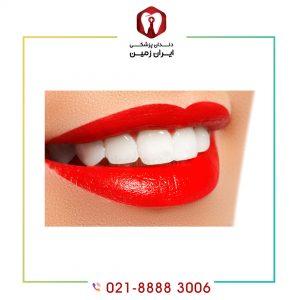 لمینت دندان خوبه یا بد ؟